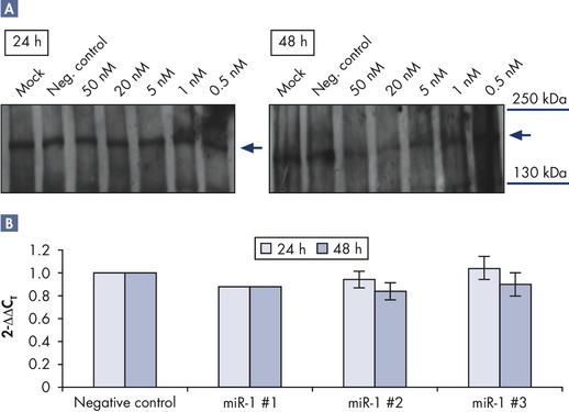 Downregulation at protein level after miR-1 mimic transfection.