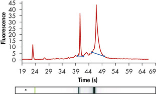 High-quality total RNA from fine needle aspirates.