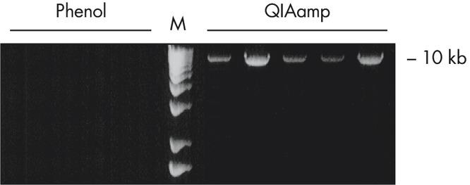 Long-range PCR.