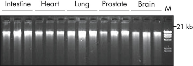 High-quality DNA from different tissue types fixed and stabilized in PAXgene Tissue Containers.