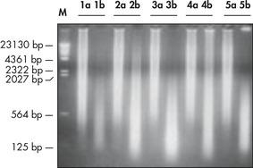 High-molecular-weight ligated DNA.