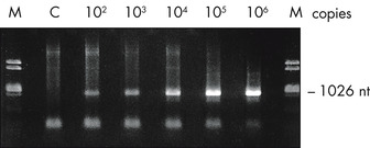Amplification of RNA from plasma.
