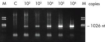 Amplification of RNA from plasma.