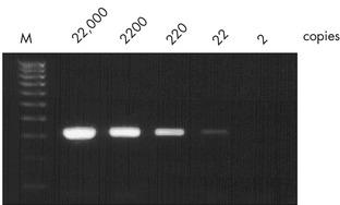 Efficient detection of viral RNA.