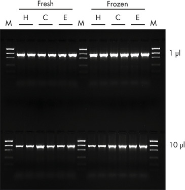 <p>High PCR performance of purified DNA.</p>