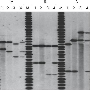 Paternity testing by RFLP analysis.