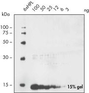 His-tagged thioredoxin detected by Penta·His Antibody in yeast cells.