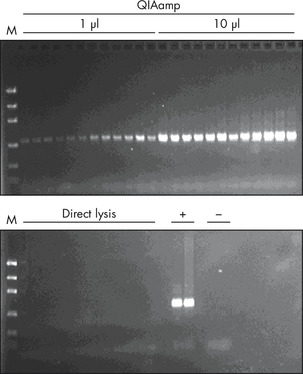 Laser microdissection PCR.