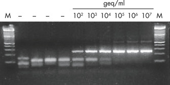 High performance of purified nucleic acids in downstream analyses.