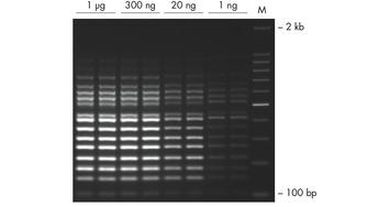 Successful 16-plex PCR over a wide range of template amounts.