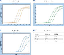 Comparable results in triplex and singleplex RT-PCR.