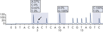 GGT to GAT mutation in base 2 of codon 12.