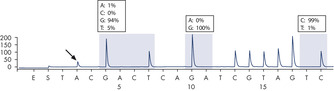 GGT to AGT mutation in base 1 of codon 12.