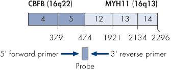CBFB-MYH11 A fusion gene transcript.