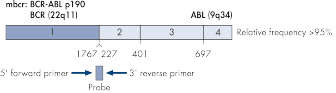 BCR-ABL mbcr fusion gene transcript.