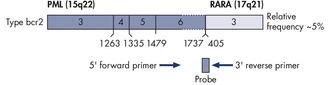 PML-RARA bcr2 gene transcript.