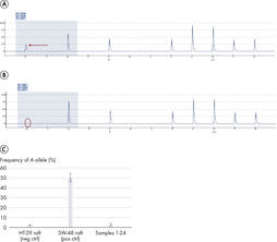 No cell contamination observed with the magnetic wand in Pyrosequencing analysis.