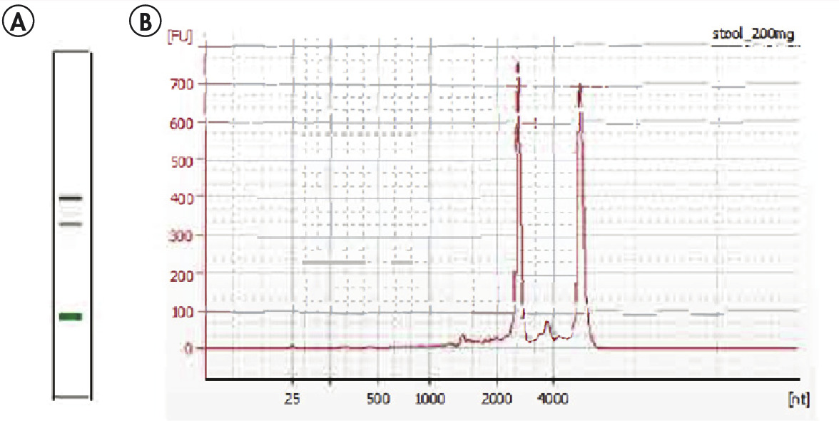 Figure 1. High-quality, intact total RNA isolated from human stool using the RNeasy PowerMicrobiome Kit.