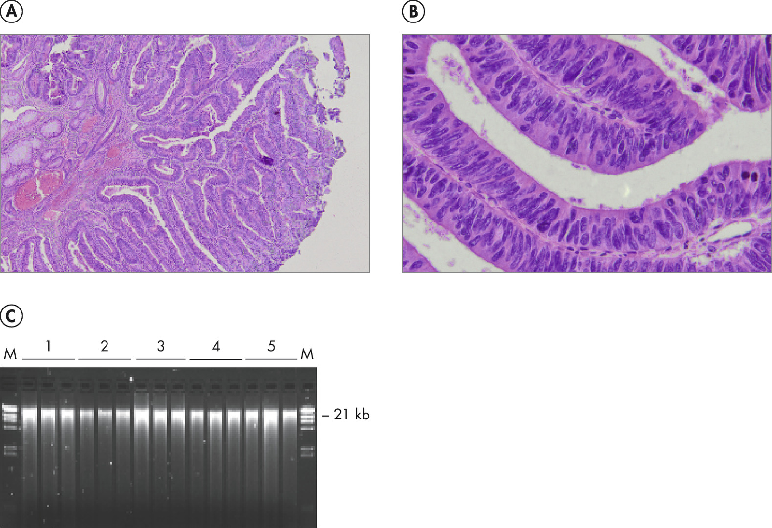 High-quality DNA from PFPE tissue with preserved morphology.