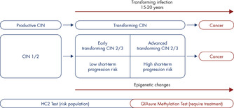 Heterogeneity seen in CIN and associated risk of disease progression to CIN 3+ and carcinogenic cells