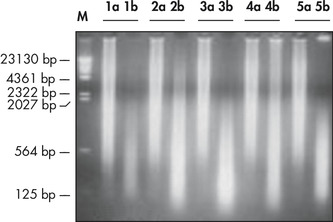 High-molecular-weight ligated DNA.