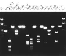 Complete digestion with various restriction enzymes.