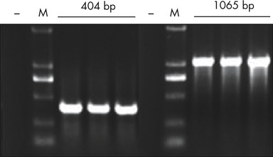 RT-PCR of RNA purified from fixed tissue.