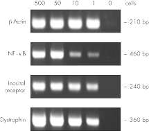 RT-PCR with RNA corresponding to 1 cell.