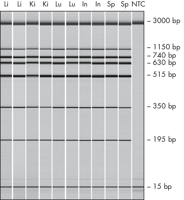 High-quality DNA for reliable multiplex PCR analysis.
