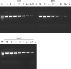 Sensitive PCR using DNA purified from preserved blood.