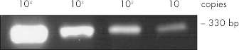 Sensitive RT-PCR of ≥10 copies.