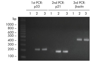 Sequential PCR analysis.
