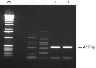 RT-PCR of GC-rich template.