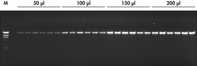 Agarose gel of purified genomic DNA.