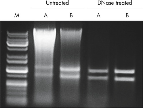 Figure 1: Genomic DNA eliminated from RNA samples using the DNase Max enzyme.
