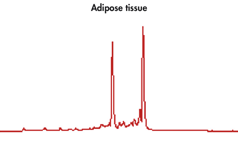 High-quality RNA from adipose tissue.