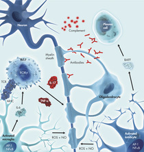 Inflammation in Multiple Sclerosis
