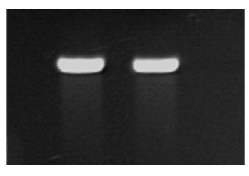 Figure 2: Pure DNA from stream biofilm.