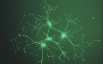 Transfection of neuronal PC-12 cells using SuperFect Reagent.