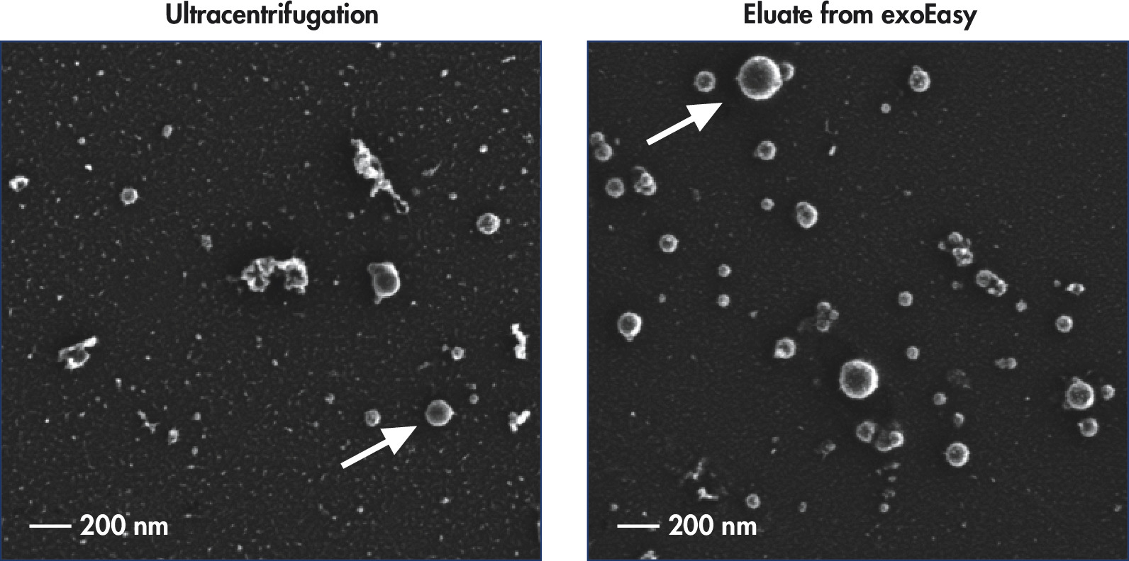Intact vesicles are eluted from the exoEasy membrane with higher purity compared with ultracentrifugation.